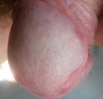 penis mit zurückgezogener vorhaut