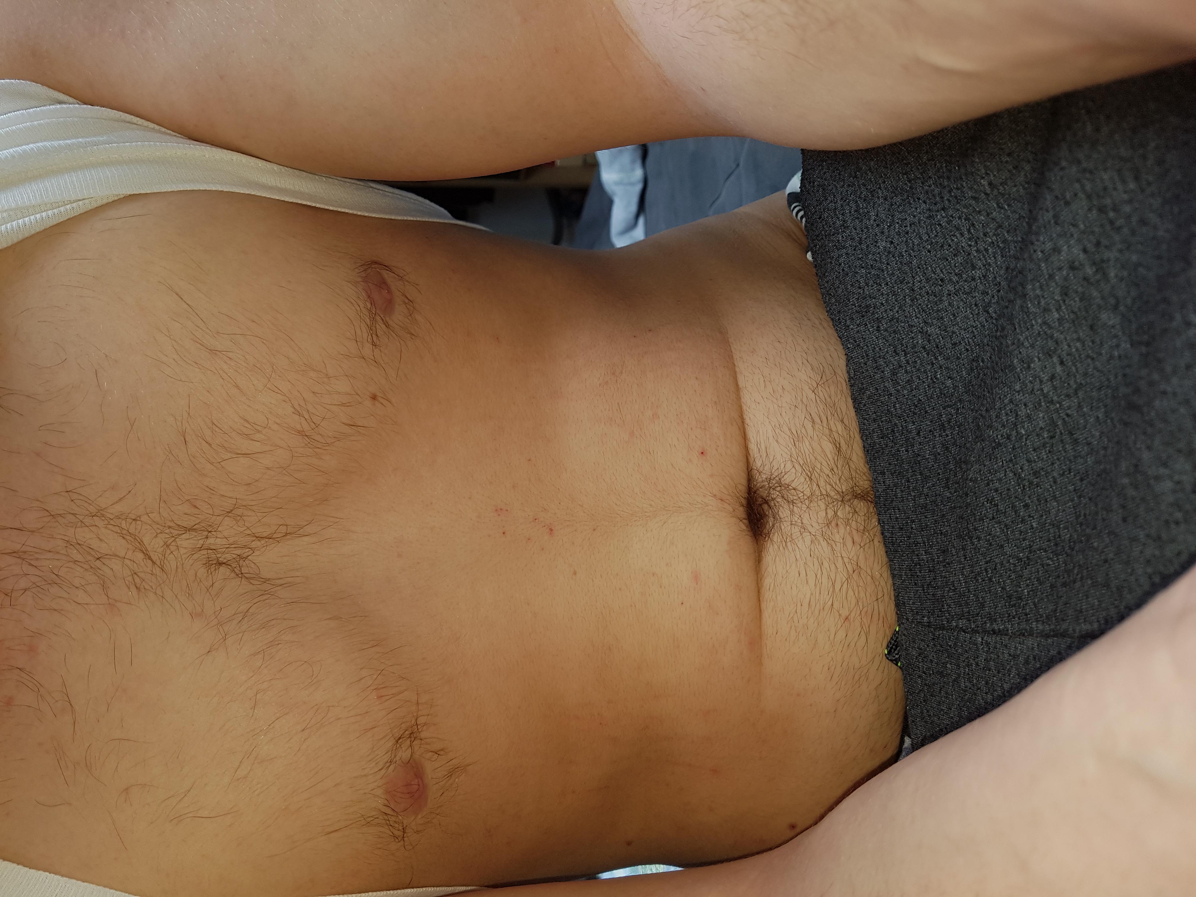 Auf penis ausschlag 21 schlechte